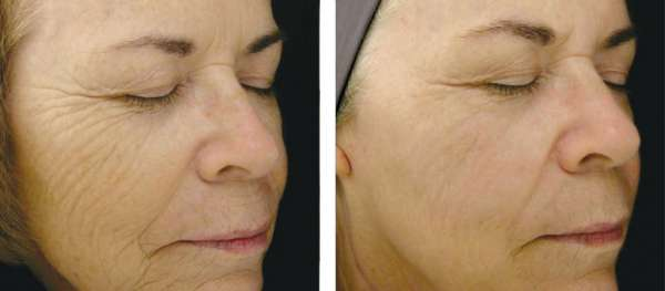 Face Wrinkles Correction by HIFU Therapy