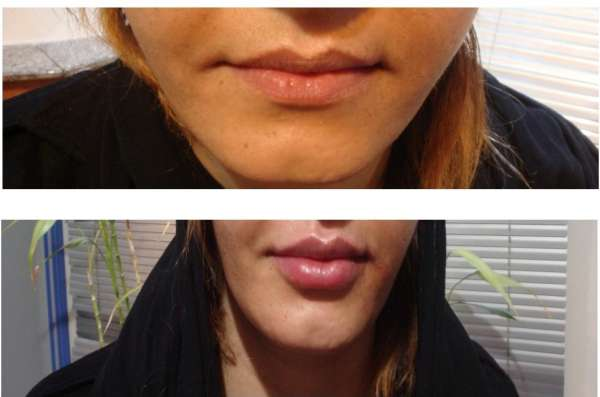 Lip Correction by Filler