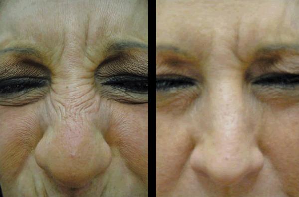 Bunny Nose Correction by Botox
