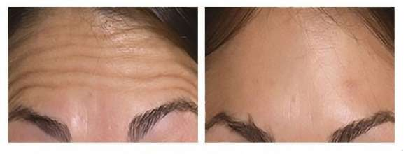 Forehead Lines Correction by Botox