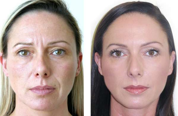 Frown Line Correction by Filler