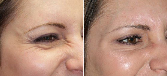 Crow Lines Correction by Botox
