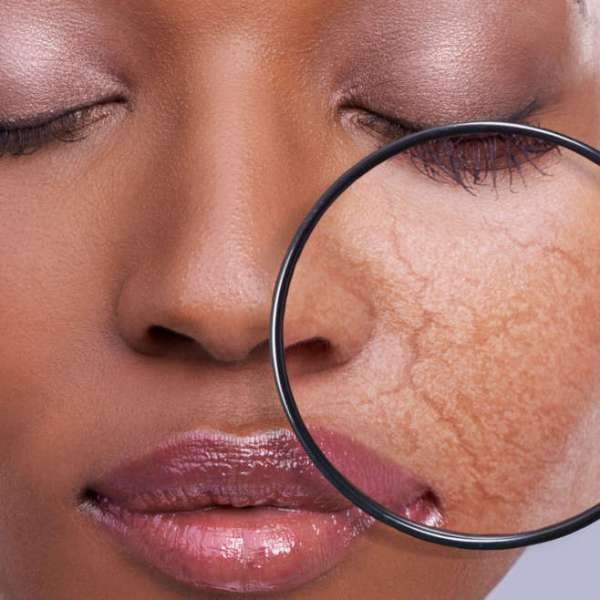 skin hair beauty filler botox aesthetic