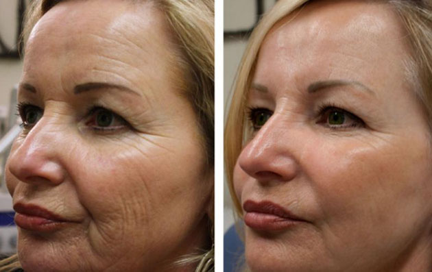 Before & After HIFU Therapy