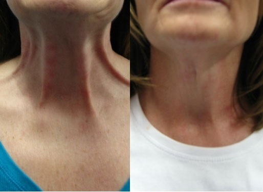 Neck Lines Correction by Botox