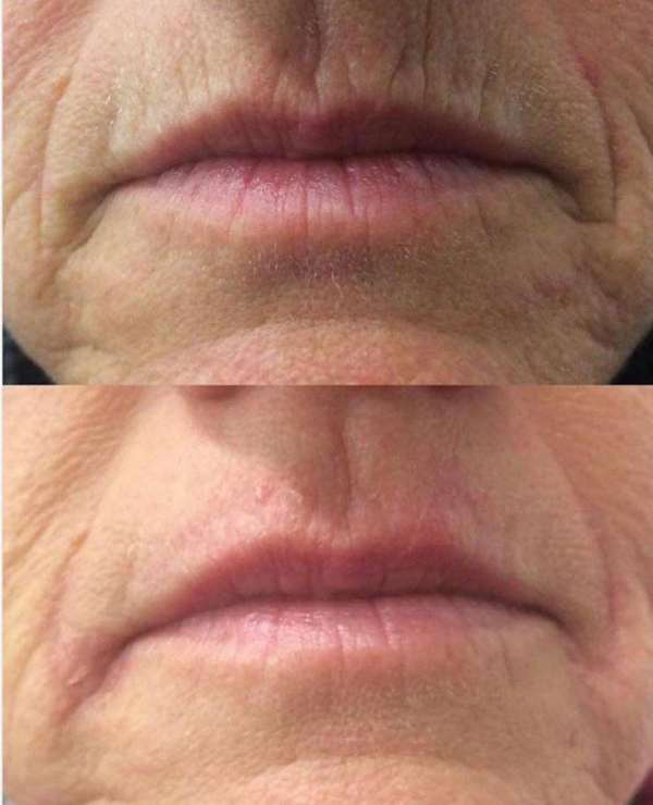 Lip Wrinkles Correction by HIFU Therapy